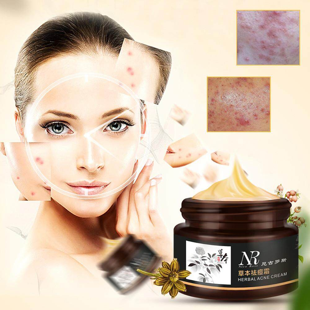 Removal Blemish Facial Effective Herbal Acne Cream Treatments Care Face Skin - intl