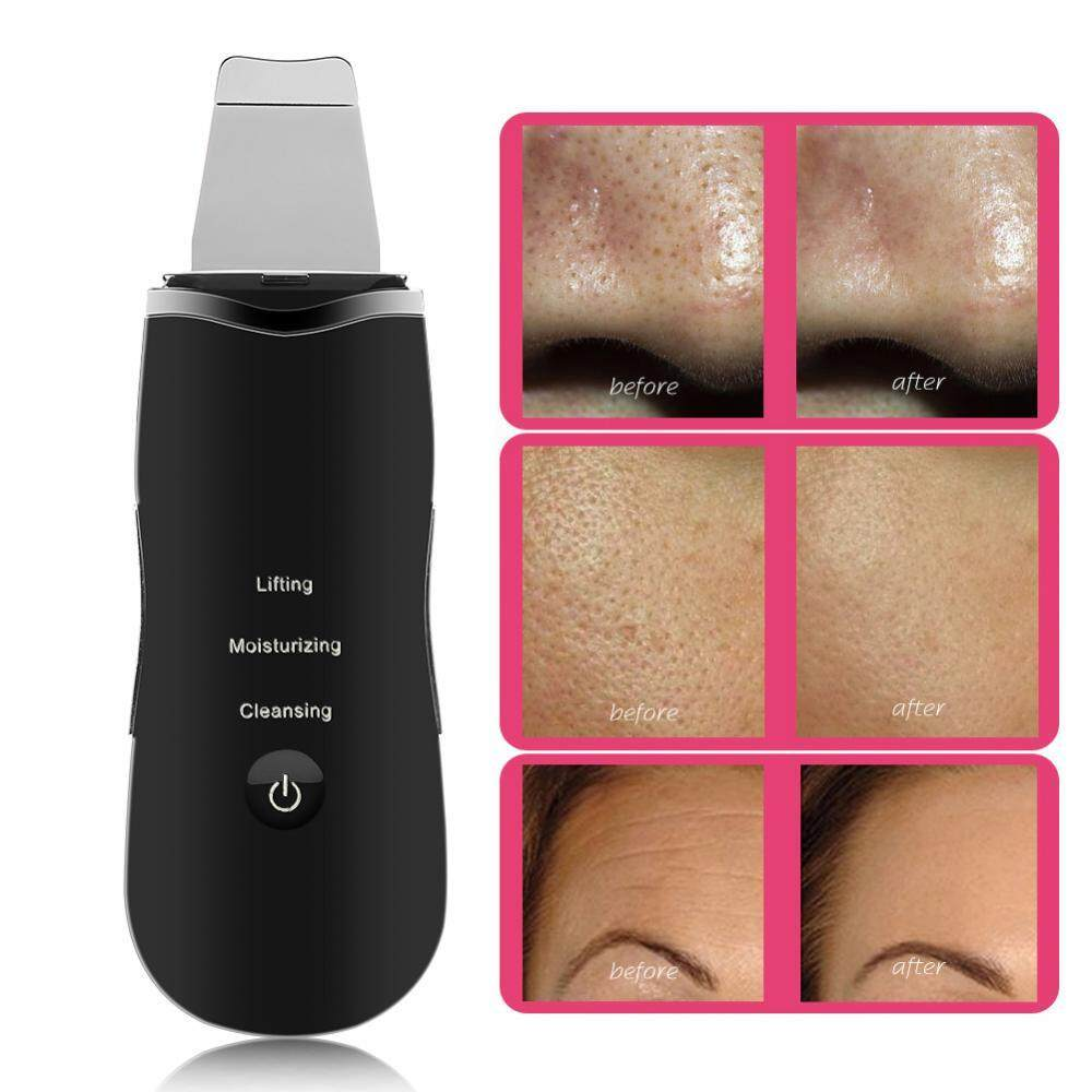 Ultrasonic Skin Scrubber Ion Facial Pores Cleaner Skin Peeling Cuticles Removal Anti Wrinkle Scrubber