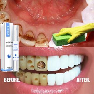 [Chính Hãng 100%], Serum Làm Sạch Bút Làm Đẹp Răng Dụng Cụ Nha Khoa Loại Bỏ Vết Bẩn Mảng Bám, Bút Làm Đẹp Răng Trắng Vệ Sinh Răng Miệng thumbnail