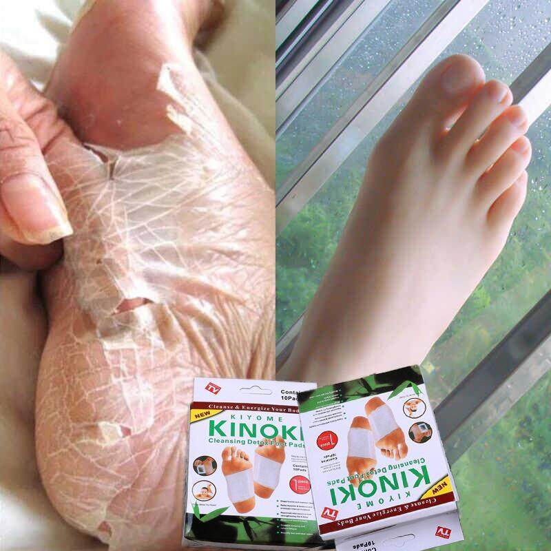 Kinoki Detox Foot Patches By Skin Care Authentic.