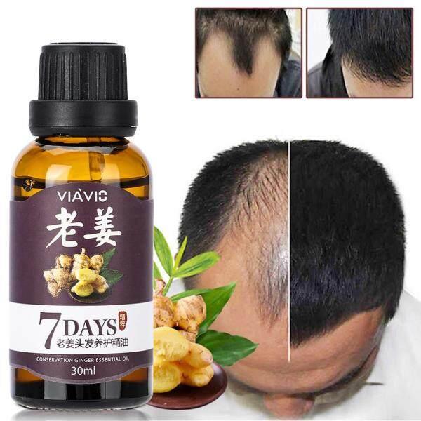 Tinh chất tăng trưởng tóc nhanh cho cả nam và nữ 30ml Chiết xuất thực vật tự nhiên nuôi dưỡng điều trị chống rụng tóc