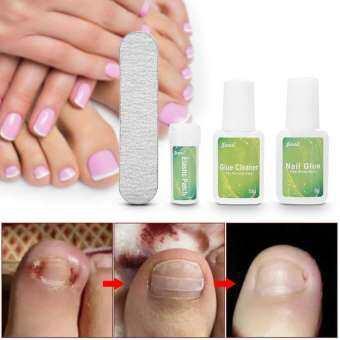 5Pcs Professional Pedicure Tool Set Toe Nail Trimer Ingrown Toenail Correcction Fixer Foot Care - intl