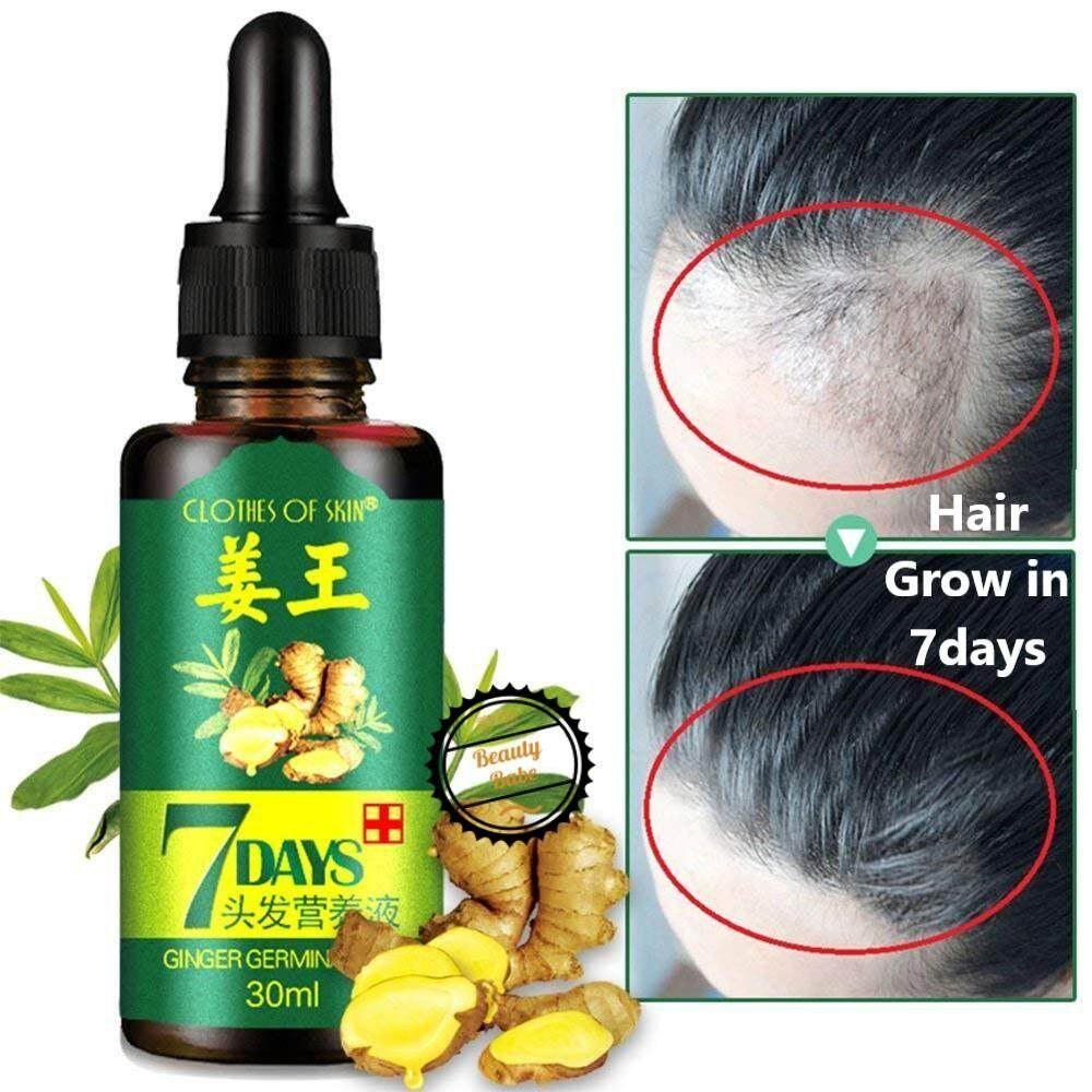 Fast Natura Hair Growth Spray Essence Liquid Dense Regrowth Essence Treatment Preventing Baldness Consolidating Anti Hair Loss Easy To Repair Hair Care & Styling Back To Search Resultsbeauty & Health