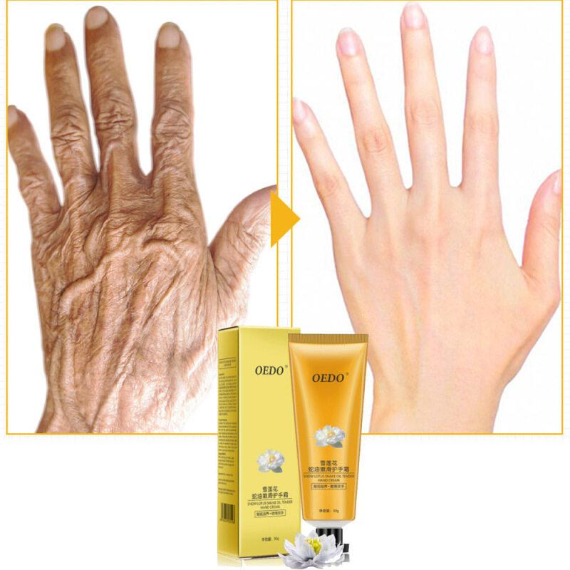 OEDO Kem dưỡng da chống nứt nẻ,  tay chân, kháng khuẩn, chống lão hoá, giá tốt - INTL