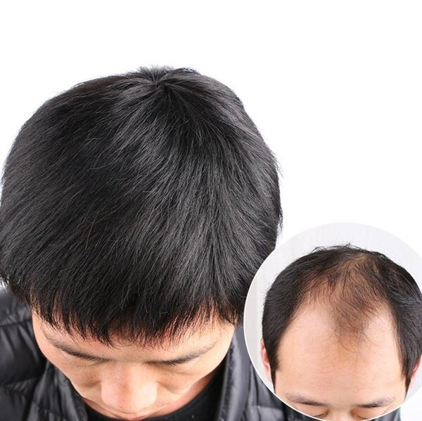 Buy 【ready stock】00% Real Human Hair Wigs for men Mens Hair Topper Wig Toupee Clip Hairpiece Top Wig for Daily Wear Balding Natural models 16cm*18cm Singapore
