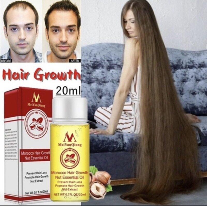 MeiYanQiong Một lọ tinh dầu gừng 20ml giúp nuôi dưỡng và bảo vệ tóc chắc khỏe - INTL