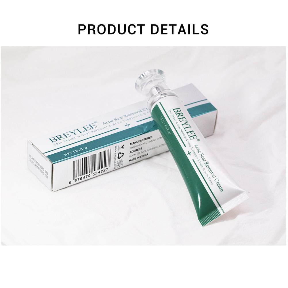 30g Da Sửa Chữa Thu Nhỏ Lỗ Chân Lông Đầu Đen Cơ Thể Loại Bỏ Sẹo Kem Điều Trị Mụn tốt nhất