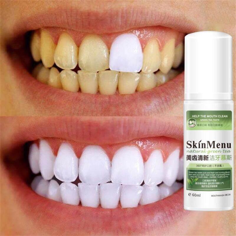COD Tinh Khiết Tự Nhiên Loại Bỏ Vết Bẩn Răng Vàng Răng Trắng Làm Sạch Miệng Phun 60ml